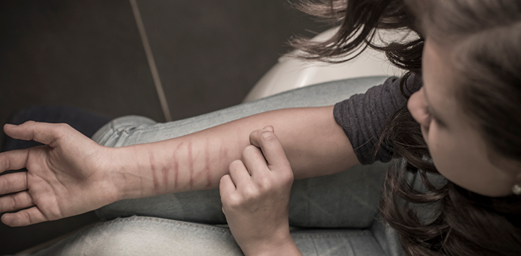 self harm young lady making cuts in her arm